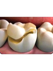 Inlay or Onlay - 757 Dental Solutions