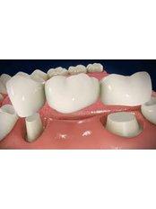 Sinus Lift - 757 Dental Solutions
