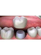 Porcelain Venner - 757 Dental Solutions