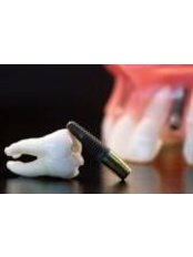 Simple Extraction - 757 Dental Solutions