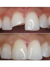 Porcelain Crown - 757 Dental Solutions