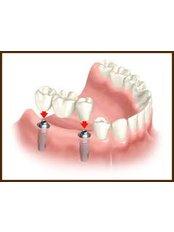 Teeth Cleaning - 757 Dental Solutions
