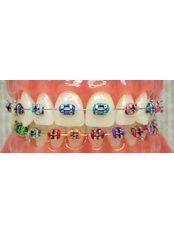Child Braces (Orthopedic Orthodontics) - Clínica Dental Unión
