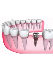 Dental Implants - Clínica Dental Unión