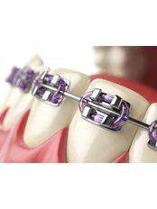 Orthodontics (Braces) - Clínica Dental Unión