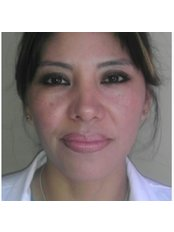 dr.Laura Martinez - Doctor at Dental Implant Clinic
