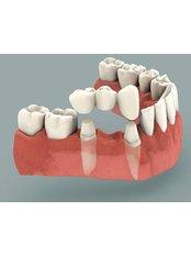 Dental Bridges - Dr. Mexico