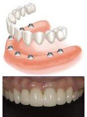 Dental Implants - Dr. Mexico