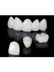 Dental Crowns - Dr. Mexico
