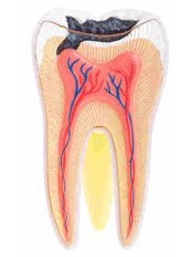 Root canals - Dr. Mexico