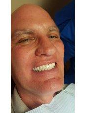Smile Makeover - Revolution Dental Care