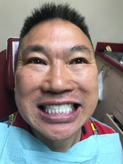 Veneers - Revolution Dental Care