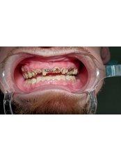 Full Mouth Rehabilitation - Revolution Dental Care