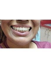 Dental Crowns - Revolution Dental Care