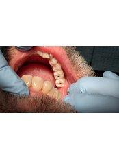 Single Implant - Revolution Dental Care