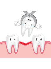 Extractions - Revolution Dental Care