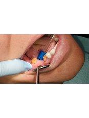 3-Unit Zirconia Bridge - Revolution Dental Care