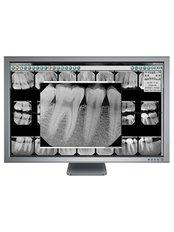 Digital Dental X-Ray - Revolution Dental Care
