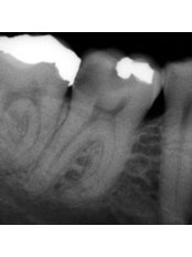 Root Canals - Revolution Dental Care