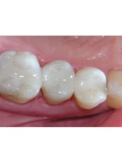 Fillings - Revolution Dental Care