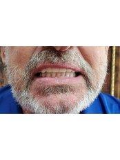 All-on-4 Dental Implants - Revolution Dental Care