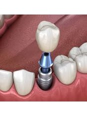 Restoration of Implants - Revolution Dental Care