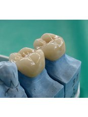 Dental Crowns - Odontología Especializada