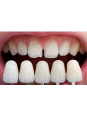 Veneers - Dentino