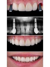 Dental Implants - Dentino
