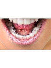 Dental Crowns - Dentino