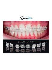 Braces - Dentino