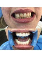 Zirconia Crown - Dental Montenegro