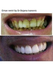 Veneers - Dental Montenegro