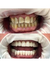 Porcelain Crown - Dental Montenegro