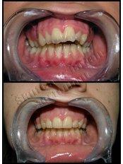 Braces - Dental Montenegro