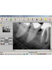 Digital Panoramic Dental X-Ray - DENTAL CLINIC AND X-RAY CABINET- PETKOVI