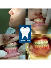 Braces - DENTAL CLINIC AND X-RAY CABINET- PETKOVI