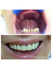 Acrylic Dentures - DENTAL CLINIC AND X-RAY CABINET- PETKOVI