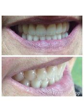 Dentures - DENTAL CLINIC AND X-RAY CABINET- PETKOVI