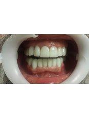 Dental Crowns - Dental Tourism Macedonia