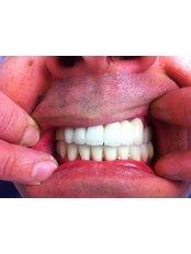 CAD/CAM Dental Restorations - Dental Tourism Macedonia