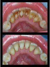 Air Abrasion - DentiMax Dental Office