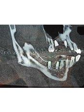 3D Dental X-Ray - Mediana Dental Implants - Macedonia
