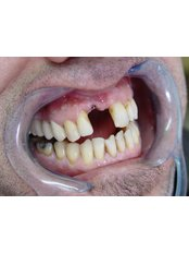 Single Implant - Vita Dent