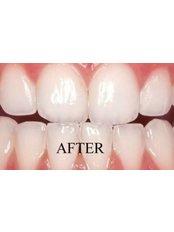Teeth Whitening - Bite Works Dental Care