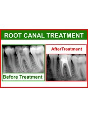 Root canals - Smile Line - Specialist Dental Surgery