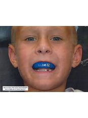 Mouth Guard - Smile Line - Specialist Dental Surgery