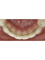 Orthodontic Retainer - Smile Line - Specialist Dental Surgery