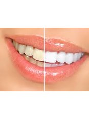 Teeth Whitening - Smile Line - Specialist Dental Surgery