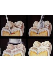 Pits & Fissures Sealants @ ( Smile Line ) - Smile Line - Specialist Dental Surgery